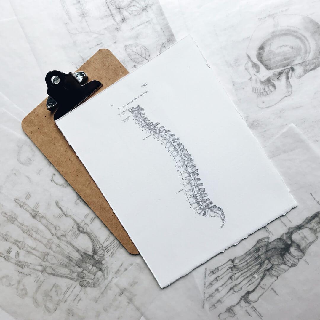 Spondylolistese